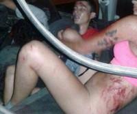 Fazer sexo no carro pode ser perigoso!