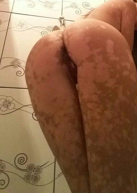 Gostosa com vitiligo pelada caiu na net 15