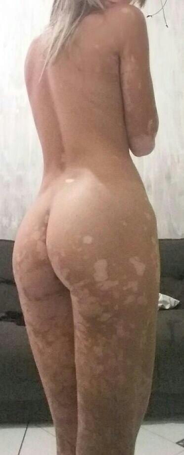 Gostosa com vitiligo pelada caiu na net 3