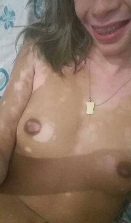 Gostosa com vitiligo pelada caiu na net 7